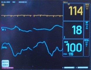 hartinfarct symptomen mannen
